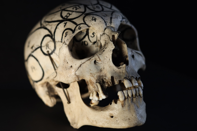 Menneskekranie med frenologiske aftegninger, Carl Ottos samling